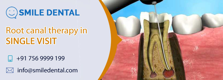 Single visit root canal therapy