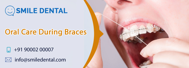 Oral care during braces