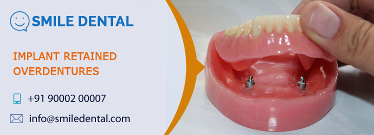 Implant Retained Overdentures